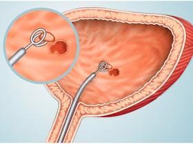 Рак мочевого пузыря: цистоскопия