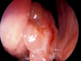 Рак носа