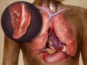 Рак плервы легких (Мезотелиома)