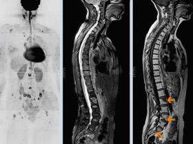 Рак позвоночника: метастазы