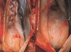 Рак позвоночника: симптомы