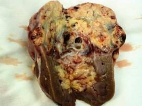 Рак почки: виды фото