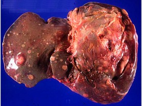 Рак почки: метастазы