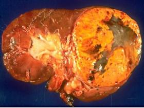 Рак почки: операция