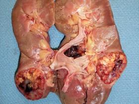 Рак почек: опухоль