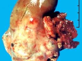 Рак почки: проявления