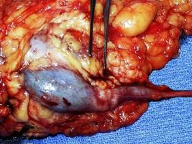 Рак почечной лоханки