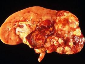 Рак почки: диагностика