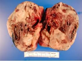 Рак почки: фото