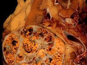 Рак почки