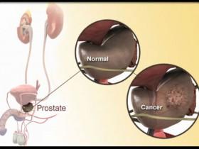 Лечение неинфекционного простатита у мужчин