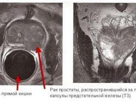 Рак простаты: МРТ