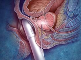 Рак простаты и гемоглобин 75