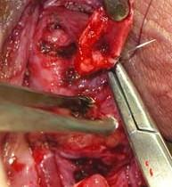 Рак простаты и эпицистостома