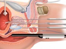 Рак простаты: лечение и профилаткика