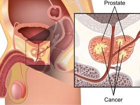 Рак простаты: лучевая терапия