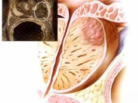 Рак простаты: методы лечения