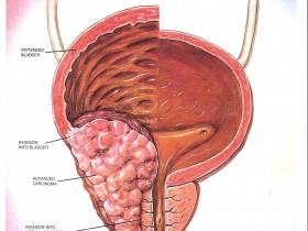 Рак простаты: метастазы