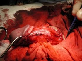 Рак простаты: после операции
