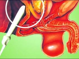 Рак простаты: способы лечения