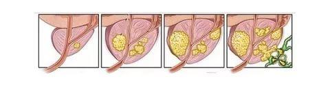 Рак простаты: стадии