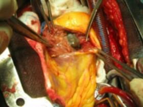 Рак сердца: лечение