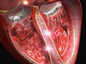 Рак сердца: миксома сердца
