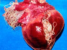 Рак сердца: паразиты