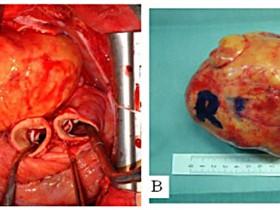 Рак сердца: фото