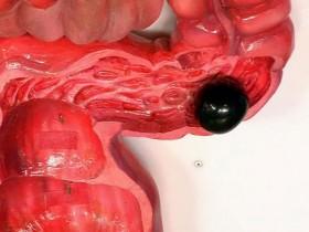 Рак сигмовидной кишки: воспаление
