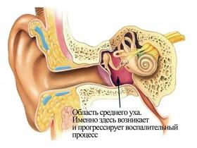 Рак среднего уха