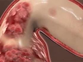 Рак толстой кишки: признаки