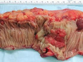 Рак толстой кишки: фото
