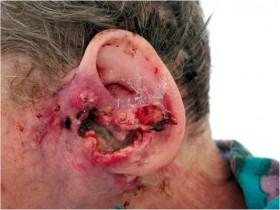 Рак уха: лечение и профилактика