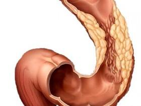 Симптомы рака прямой кишки
