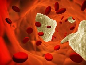 Повышенное количество тромбоцитов в крови