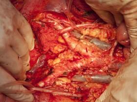 Рак сигмовидной кишки: диагностика
