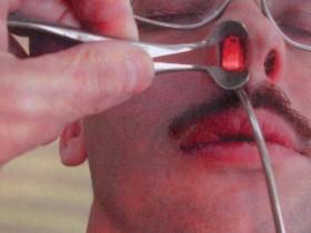 Рак носа: диагностика