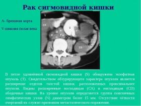 Рак сигмовидной кишки: исследования