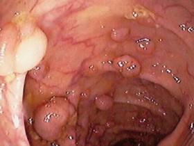 Рак толстого кишечника: лечение