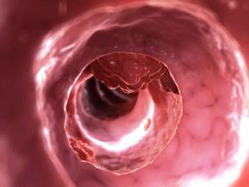 Рак прямой кишки: лечение