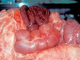 Рак прямой кишки: операция фото