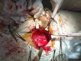 Рак простаты: операция