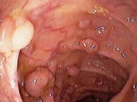 Рак прямой кишки: первые признаки