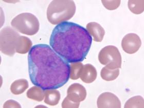 Причины возникновения острого лейкоза