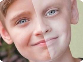 Рак крови: причины возникновения
