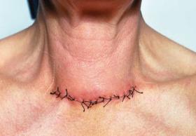 Рак щитовидной железы: прогноз