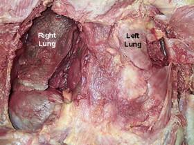 Рак легких: вред курения фото