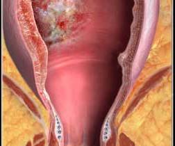 Рак толстого кишечника: фото