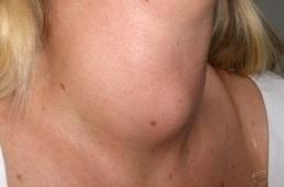 Рак щитовидной железы: симптомы
